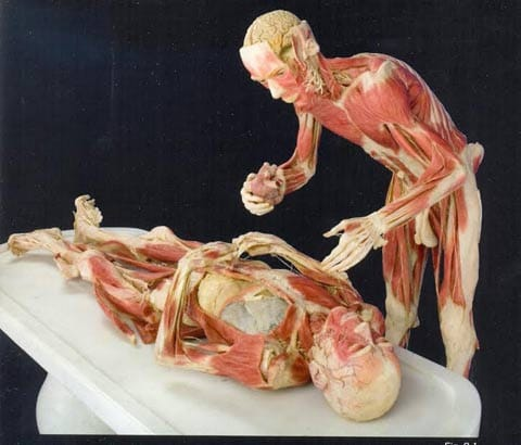 Gunther von Hagens, Surgery in Still Life, Body Worlds, 2007
